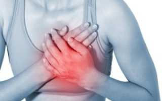 Вазоспастическая стенокардия — в чем ее опасность для жизни?