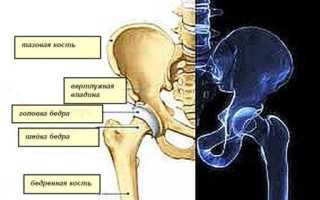 Подвывих тазобедренного сустава у взрослых – симптомы, причины, методы диагностики и лечения