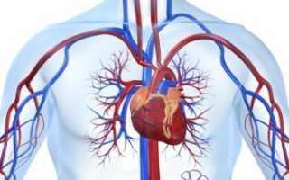 Постинфарктный атеросклероз — причины, признаки, диагностика, терапия