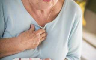 Признаки инфаркта у женщины — частые и непривычные проявления приступа