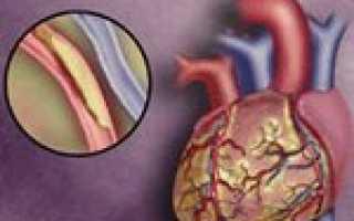 Острая коронарная недостаточность —  причины, симптомы и лечение