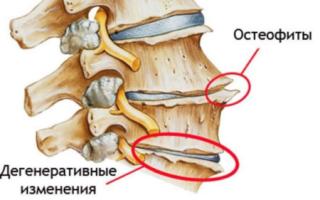 Гимнастика при спондилолистезе пояснично-крестцового отдела позвоночника – польза, виды упражнений