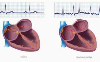 Экстрасистолия у детей — патогенез сердечной мышцы, проявления болезни
