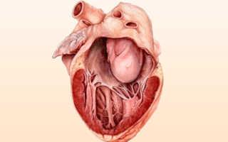 Миксома сердца — причины, факторы риска, клиническая картина заболевания