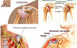 Хрустит плечо: почему возникает, как нормализовать ситуацию