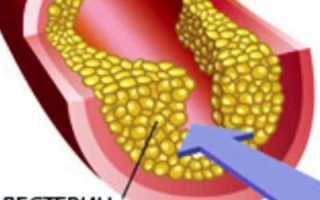 Холестерин 7,7 – насколько опасен данный показатель для человека?