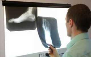 Ложный сустав после перелома – этиология, классификация, лечение, реабилитация