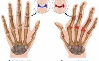 Лечение ревматоидного артрита голоданием – положительные и отрицательные стороны