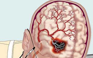 Препараты, улучшающие мозговое кровообращение при шейном остеохондрозе – правила выбора