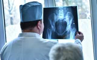 Коксартроз тазобедренного сустава 2 степени – симптомы и лечение патологии