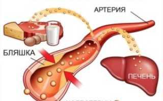 Повышенный холестерин – причины и группы риска, симптомы, лечение