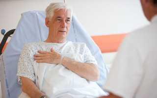 Сколько живут после инфаркта — статистика и факты, симптомы, реабилитация