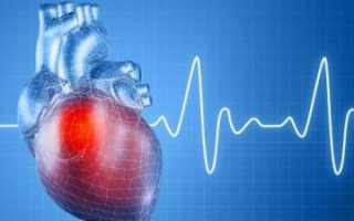 Синусовая аритмия — определение нарушения частоты сокращений сердца