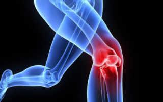 Гонартроз коленного сустава 3 степени– группа инвалидности, как получить статус и как избавиться от него