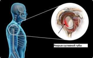 Разрыв суставной губы плечевого сустава – симптомы, лечение