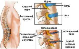 Дексаметазон при остеохондрозе – состав, отзывы, цена, показания и противопоказания