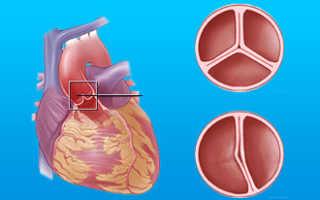 Порок митрального клапана — виды, способы диагностики и лечение
