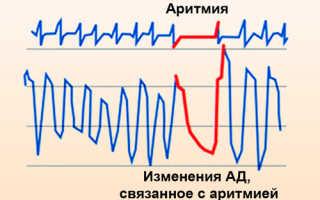 Таблетки для лечения аритмии сердца — типы, характеристика, принцип действия