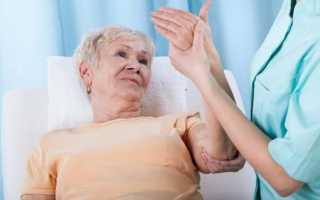 Инсульт геморрагический (левая сторона) – последствия, сколько живут люди