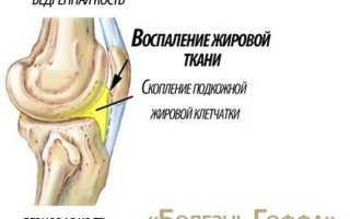 Болезнь Гоффа коленного сустава – причины, симптомы, диагностика, рекомендации