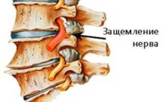 Защемление нерва в шейном отделе – строение, причины и симптомы, диагностика, лечение