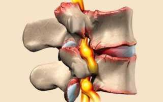 Спондилез пояснично-крестцового отдела позвоночника – лечение, причины заболевания и профилактика