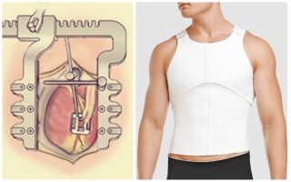 Корсет после операции на сердце — виды, назначение, правила выбора и ношения