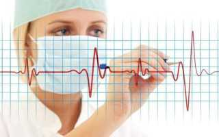 Чем отличается инсульт от инфаркта — основные отличия гемодинамических нарушений