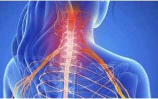 Корешковый синдром шейного отдела – симптомы, лечение традиционными и нетрадиционными методами