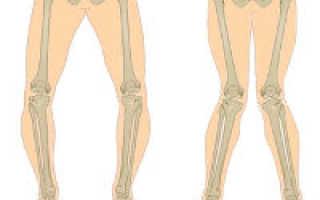Вальгусная деформация коленных суставов у детей – лечение консервативным и оперативным методами