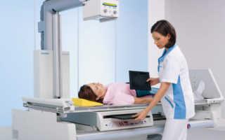 Покажет ли рентген грыжу позвоночника – почему необходимо ее проводить
