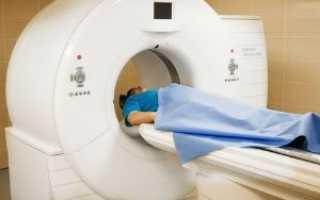 Мультиспиральная компьютерная томография — что это и в чем её преимущества?