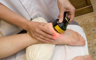 Лечение пяточной шпоры лазером – плюсы и минусы данного метода