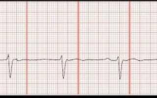 Сердце сбивается с ритма — брадикардия, тахикардия, экстрасистолия и блокада