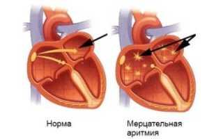 Мерцательная аритмия — причины возникновения, симптомы, методы лечения