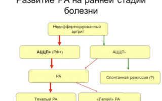 АЦЦП анализ – показания к проведению, подготовка к исследованию