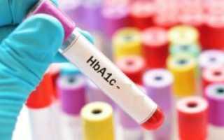 Гликированный гемоглобин — особенности исследования, подготовка и проведение
