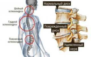 «Мексидол» при остеохондрозе шейного отдела – состав препарата, форма выпуска