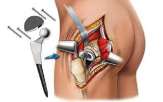 Осложнения после эндопротезирования тазобедренного сустава – клиника, лечение