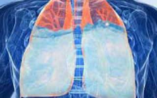Кардиогенный отек легких — причины, симптомы и лечение