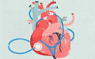 Заболевания сердечно-сосудистой системы – список, причины и признаки патологий