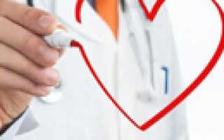 Атипичные формы инфаркта миокарда — классификация и особенности клинической картины