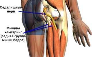Боль в тазобедренном суставе отдающая в ногу и ягодицу – лечение и диагностика патологии