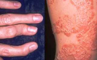 Псориатический артрит – симптомы и лечение, причины, народная медицина