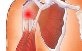 Тендовагинит плечевого сустава – симптомы, лечение, диагностика