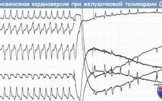 Кардиовертер-дефибриллятор — область использования, кому рекомендована его установка
