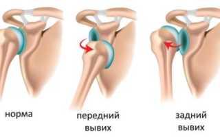 Разрыв связок плечевого сустава – лечение и профилактика