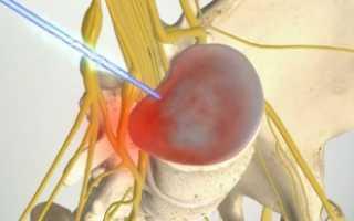 Циркулярная протрузия – что это за заболевание, его симптомы, диагностика и методы лечения