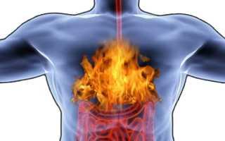 Жжение в грудной клетке — причины появления, симптомы и лечение