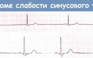 Синдром слабости синусового узла — проявление нарушений ритма сердца